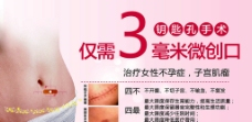 子宫肌瘤图片